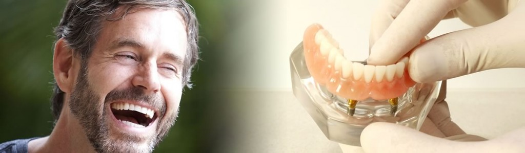 Dental implants in Perth when all teeth are missing