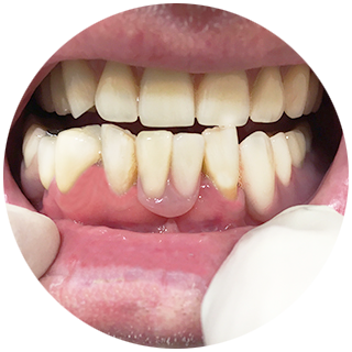 The partial denture is then clipped onto the implant abutment/s – filling the gaps!