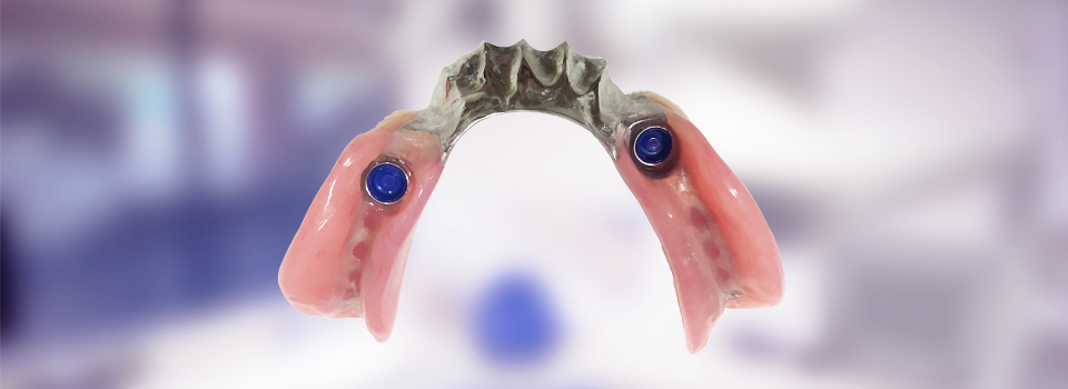 Implant-supported partial denture