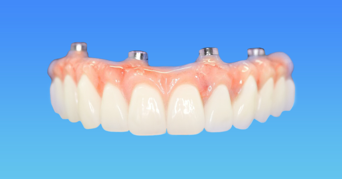 Bridge for Full Arch Rehab on Four Dental Implants