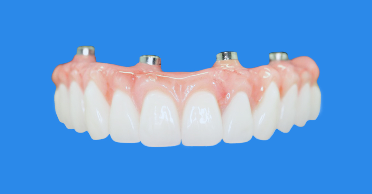 Full Arch Rehabilitation with Dental Implants