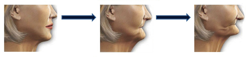Facial collapse through jaw bone resorbtion