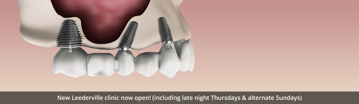 Dental Implants   New Leederville clinic now open! (including late night Thursdays & alternate Sundays)