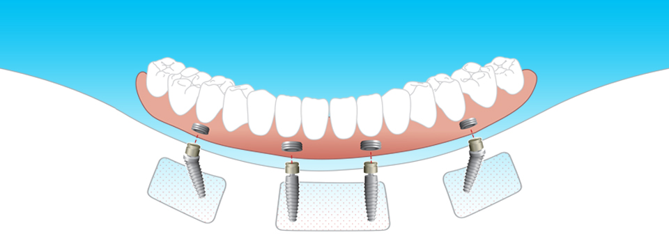 Competitively priced dental implants in Perth at Dentures Plus