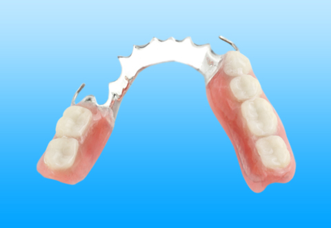 Partial dentures – a more affordable denture option