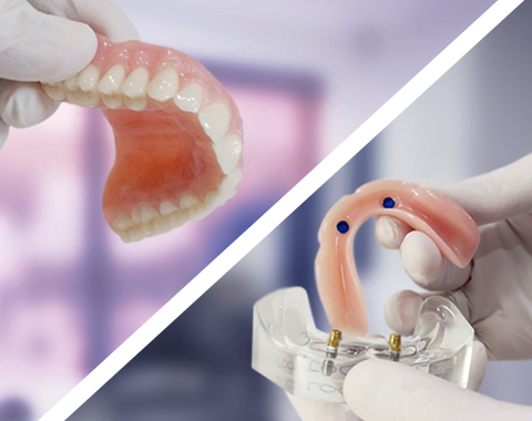 Dental Implants or Dentures – your options