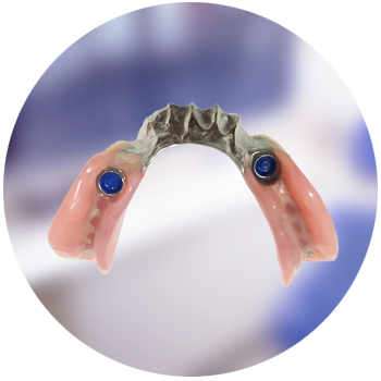 Implant-supported partial dentures