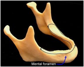 mandible-long-term