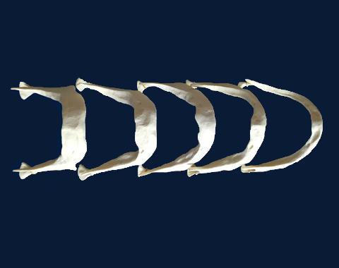 Bone loss (bone resorption) occurs with no teeth or dental implants