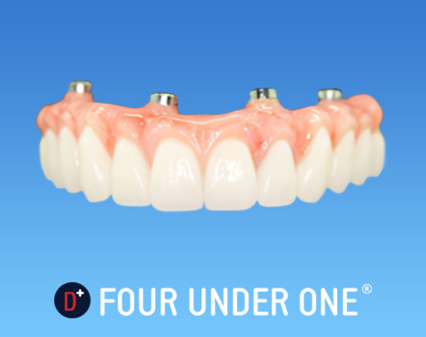 Four Under One (Full Arch Rehabilitation on four dental implants) at Dentures Plus