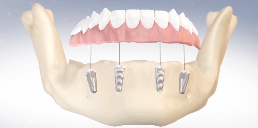 Full Arch Rehab on Four Dental Implants