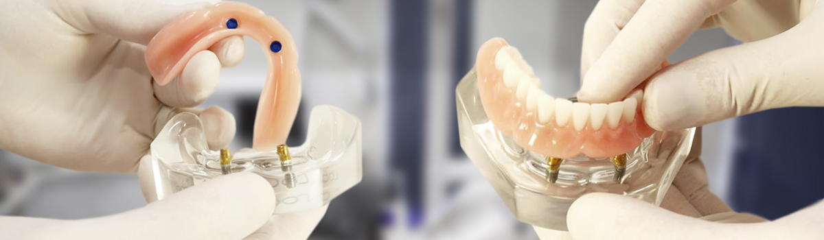 Dental Implant procedures in Leederville (Denture Connect Plus)