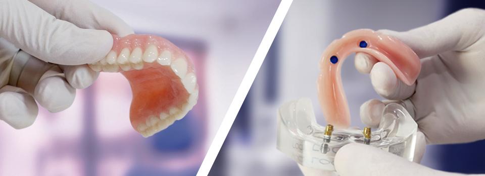 Dental Implants or Dentures – your options