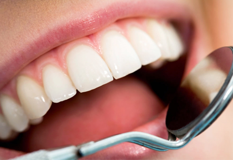 Oral hygiene requirements for those with implants